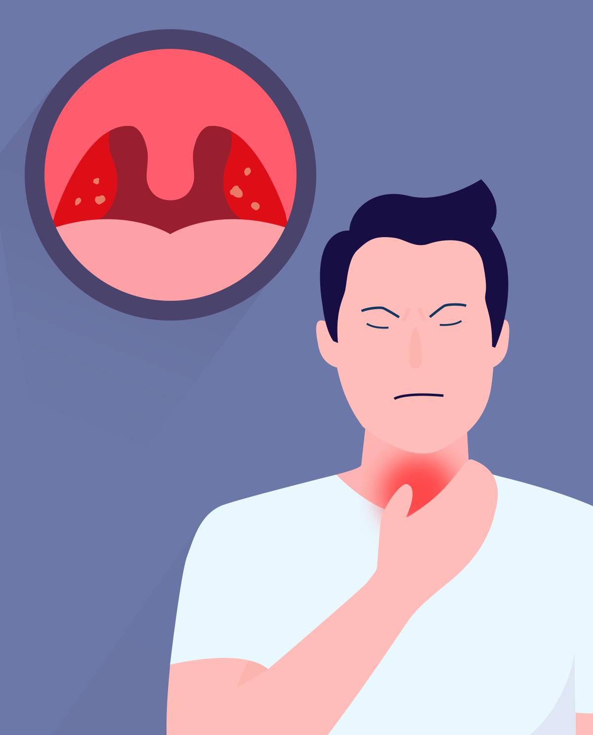 Angina - przyczyny, objawy i leczenie
