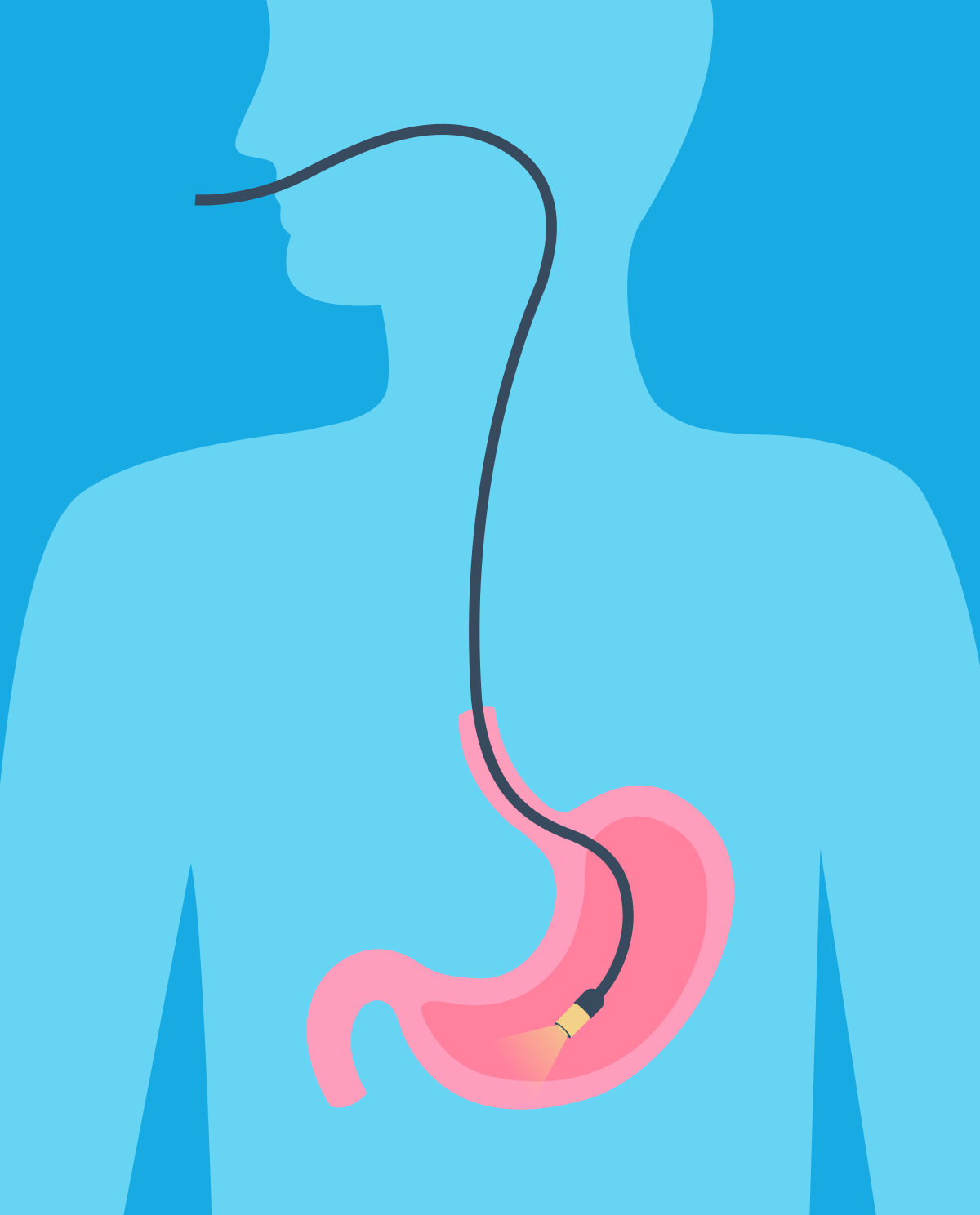 Gastroscopy - what is it and how can you prepare for it?