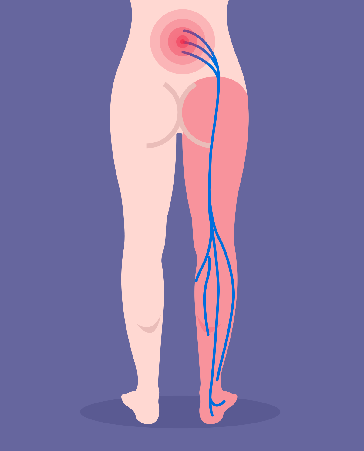 Sciatica - causes, diagnosis